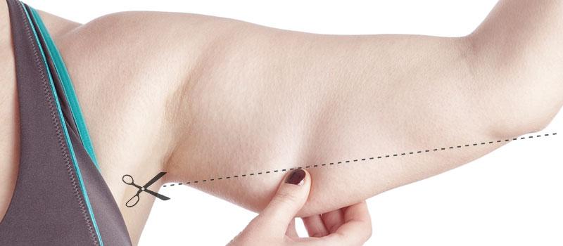 imagem ilustrativa sobre cirurgia plastica por perda de peso